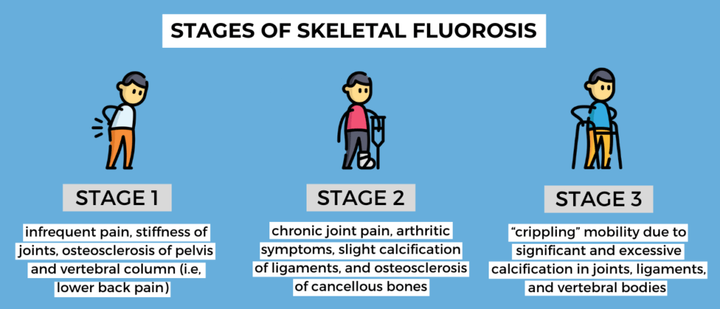 Skeletal fluorosis stages with description