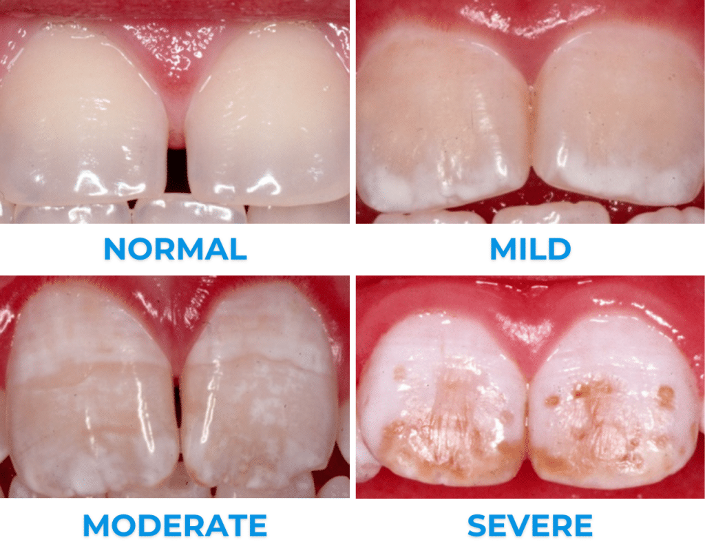 pictures of normal teeth and teeth with mild, moderate & severe dental fluorosis