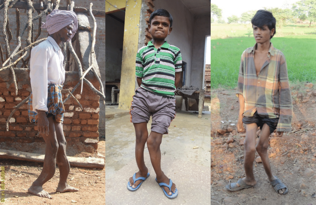 picture of three males with skeletal fluorosis in India